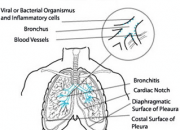 Natural Ways To Open Bronchial Airways